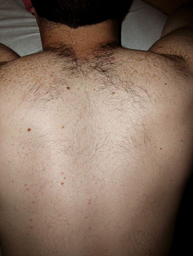 Unwanted hair removal – Before