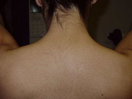 Unwanted hair removal - After